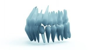 Dental Implant Gresham dentist