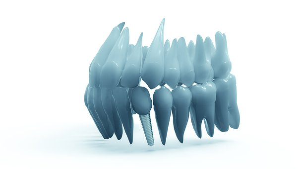 Do I need a Dental Implant?