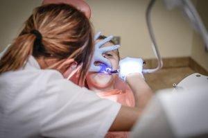 Dental Sealants Gresham dentist
