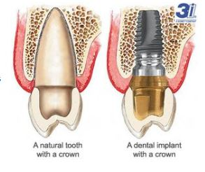 If You Lose A Tooth, Yes, You Really Do Need An Implant.